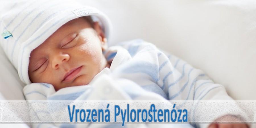 Pylorostenoza u novorozence