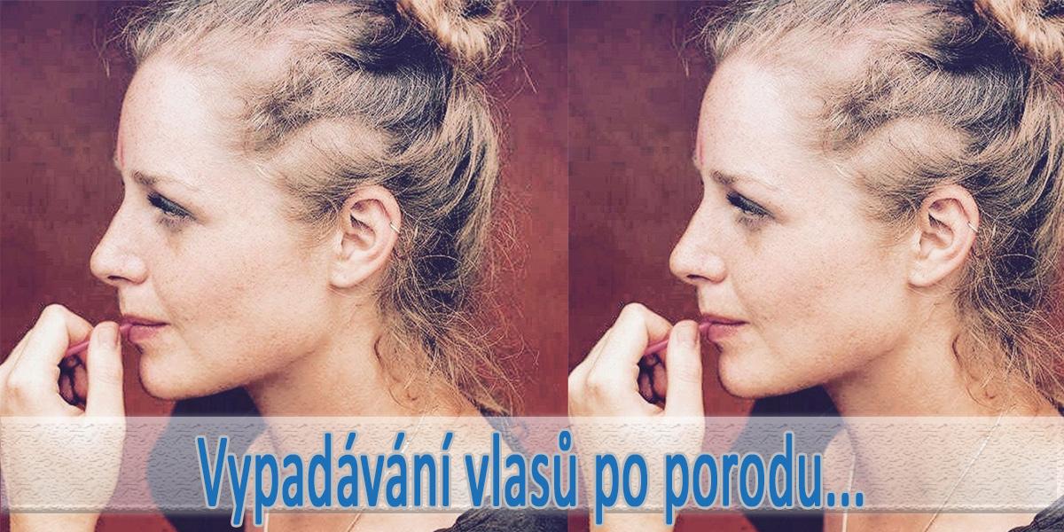 Vypadávání vlasů po porodu – strašák mnoha žen